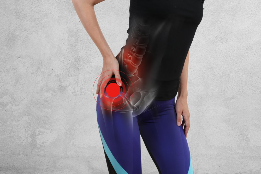 How to Manage Hip Pain Without Surgery